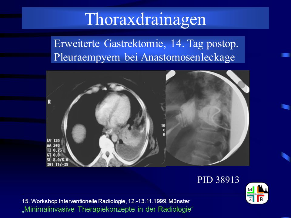 Thoraxdrainagen Erweiterte Gastrektomie, 14. Tag postop. Pleuraempyem bei Anastomosenleckage. PID 38913.