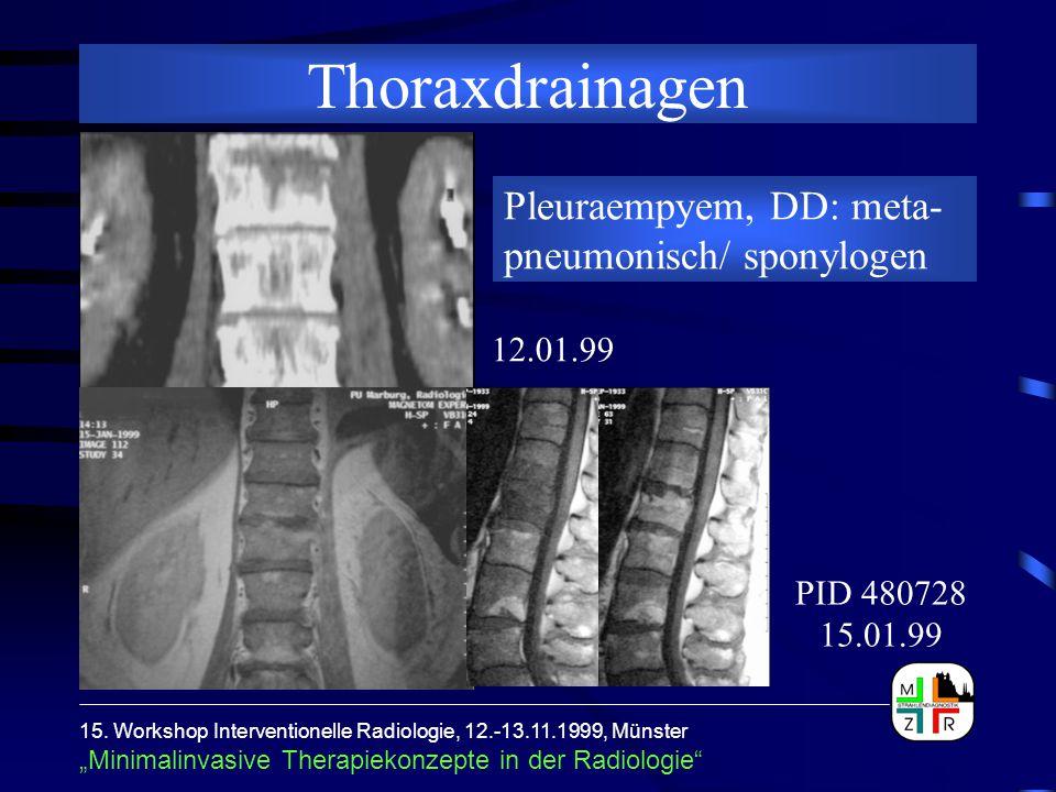 Thoraxdrainagen Pleuraempyem, DD: meta-pneumonisch/ sponylogen
