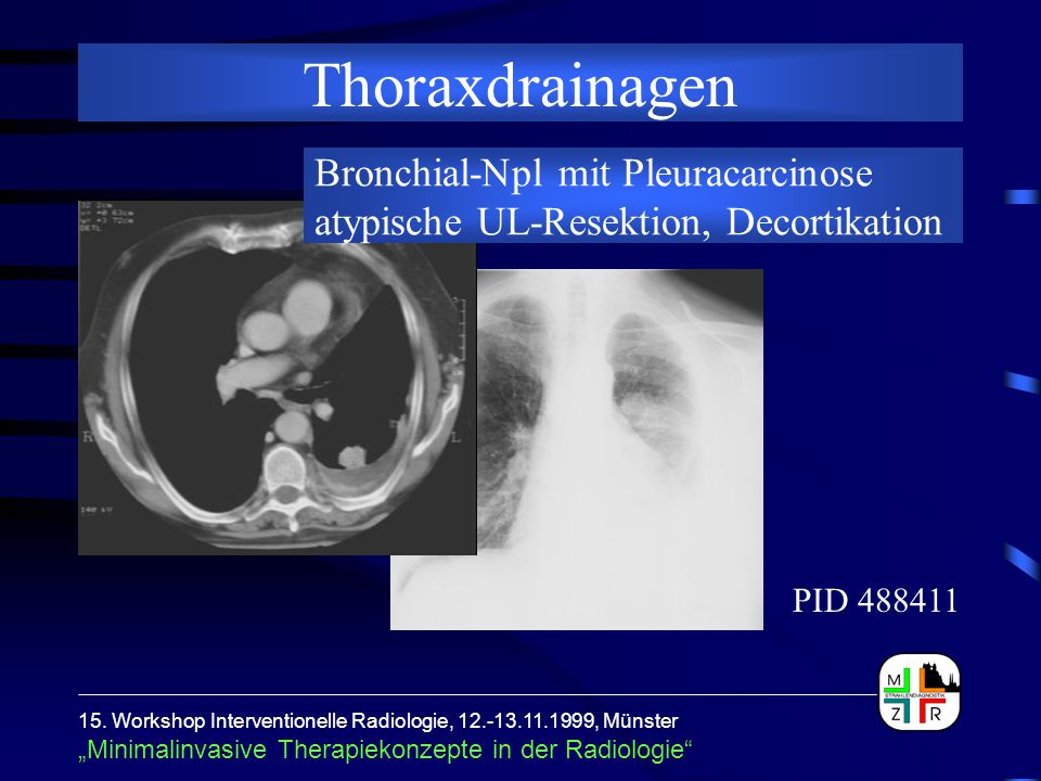 Thoraxdrainagen Bronchial-Npl mit Pleuracarcinose atypische UL-Resektion, Decortikation. PID 488411.