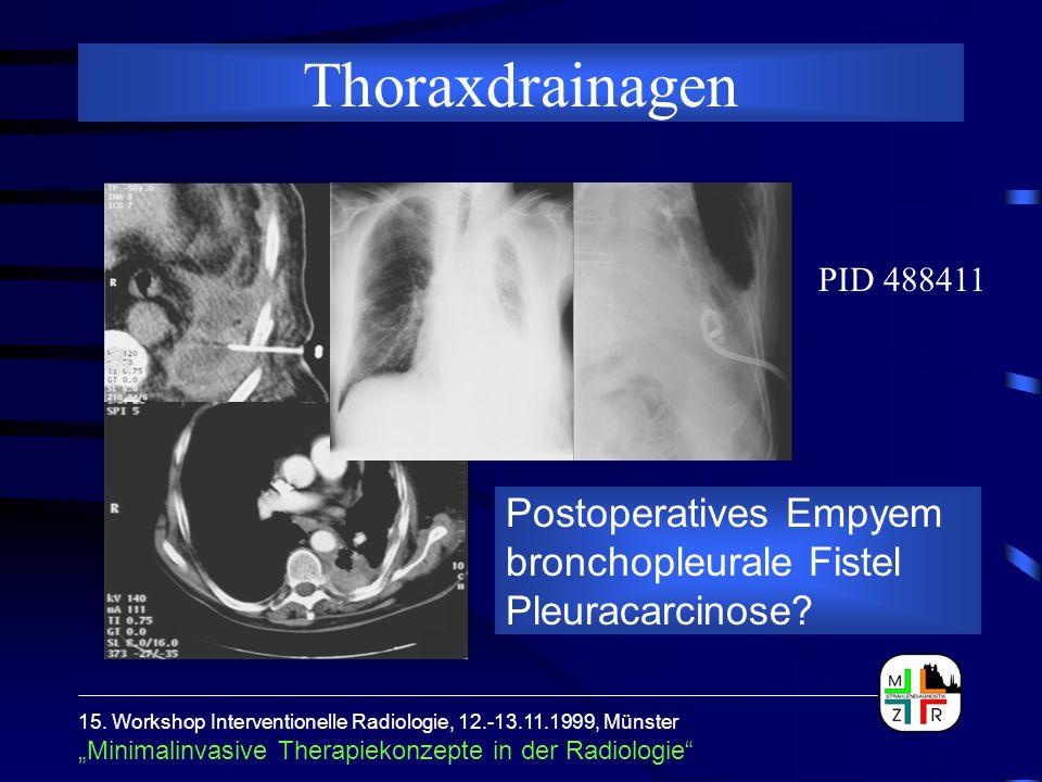 Thoraxdrainagen PID 488411. Postoperatives Empyem bronchopleurale Fistel Pleuracarcinose