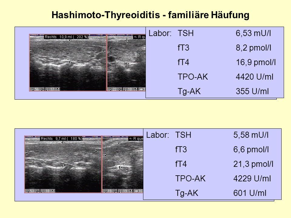Hashimoto-Thyreoiditis - familiäre Häufung