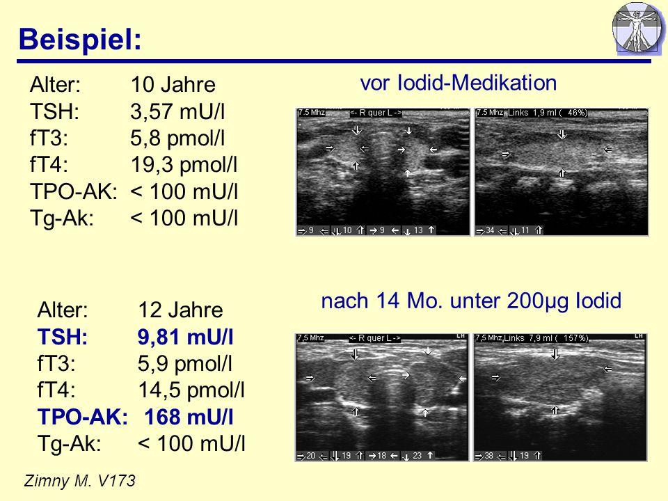 Beispiel: Alter: 10 Jahre vor Iodid-Medikation TSH: 3,57 mU/l