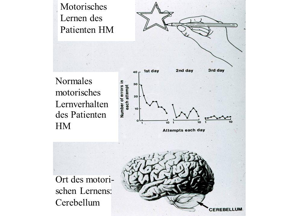 Motorisches Lernen des. Patienten HM. Normales. motorisches. Lernverhalten. des Patienten. HM.