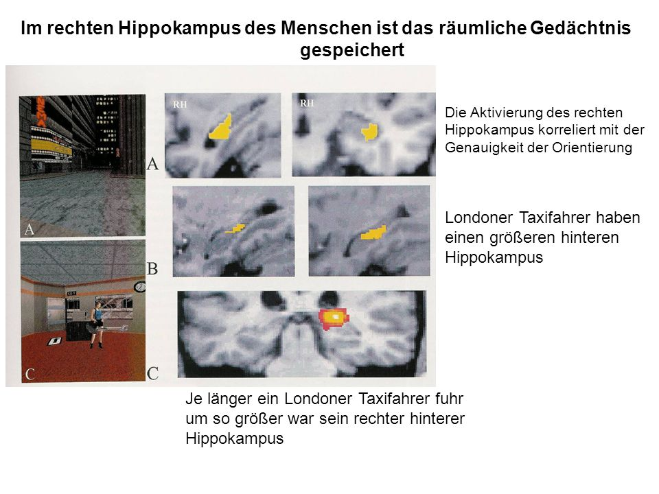 Im rechten Hippokampus des Menschen ist das räumliche Gedächtnis