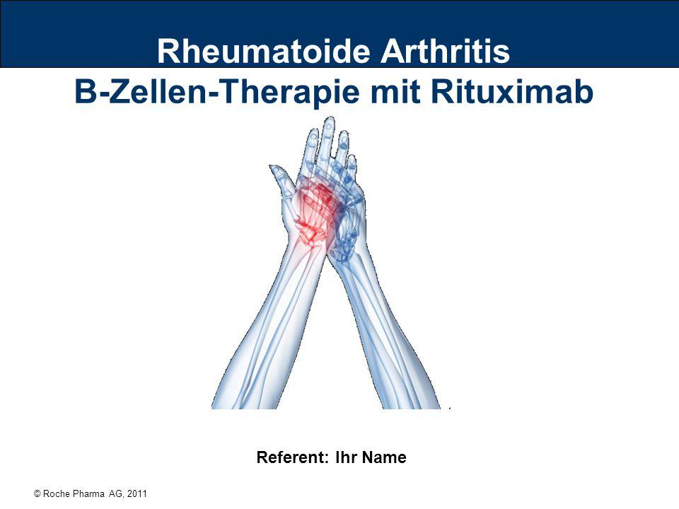Rheumatoide Arthritis B-Zellen-Therapie mit Rituximab