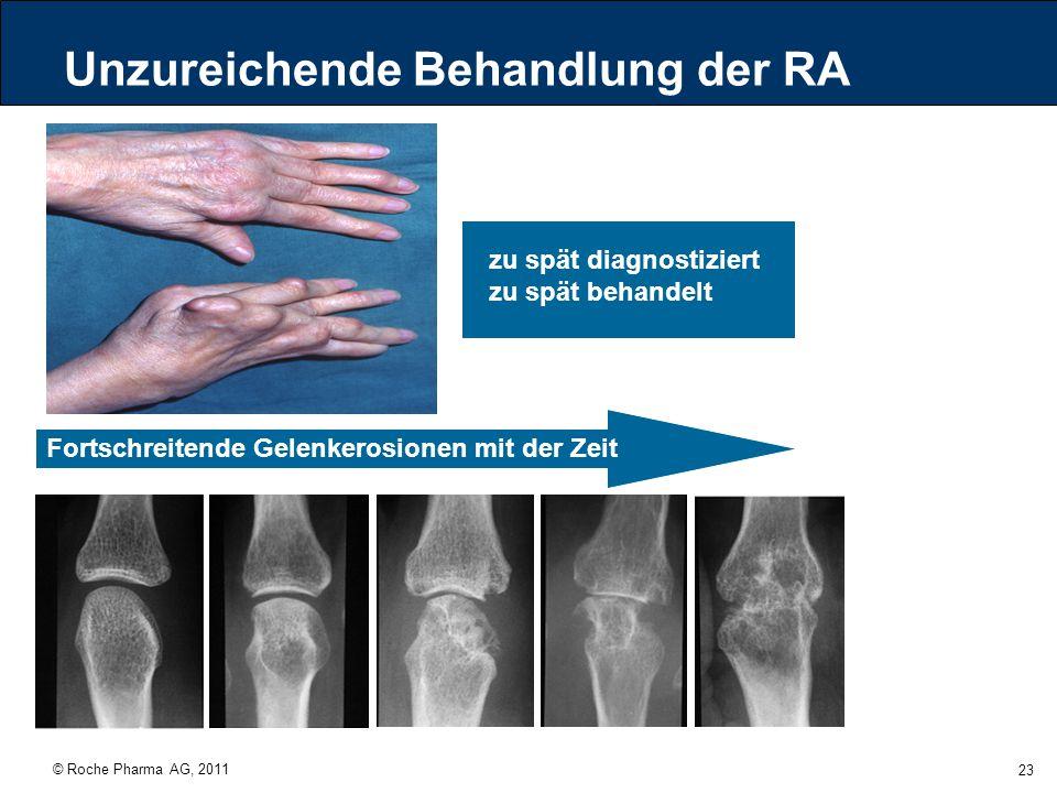 Unzureichende Behandlung der RA
