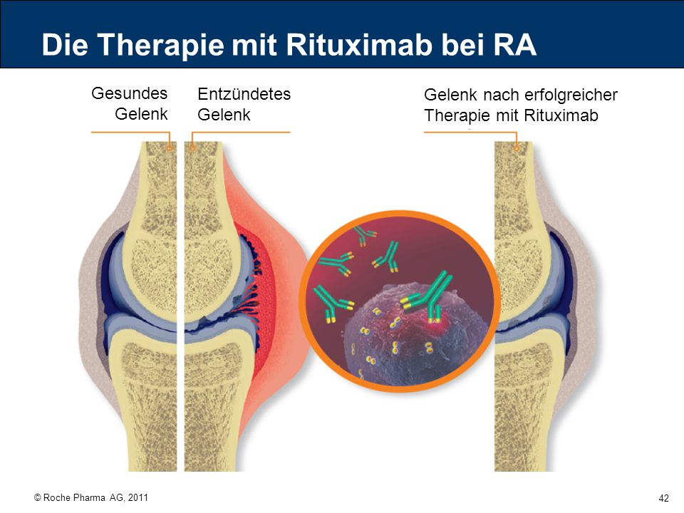 Die Therapie mit Rituximab bei RA