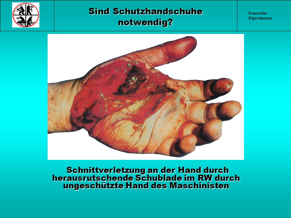 Sind Schutzhandschuhe notwendig