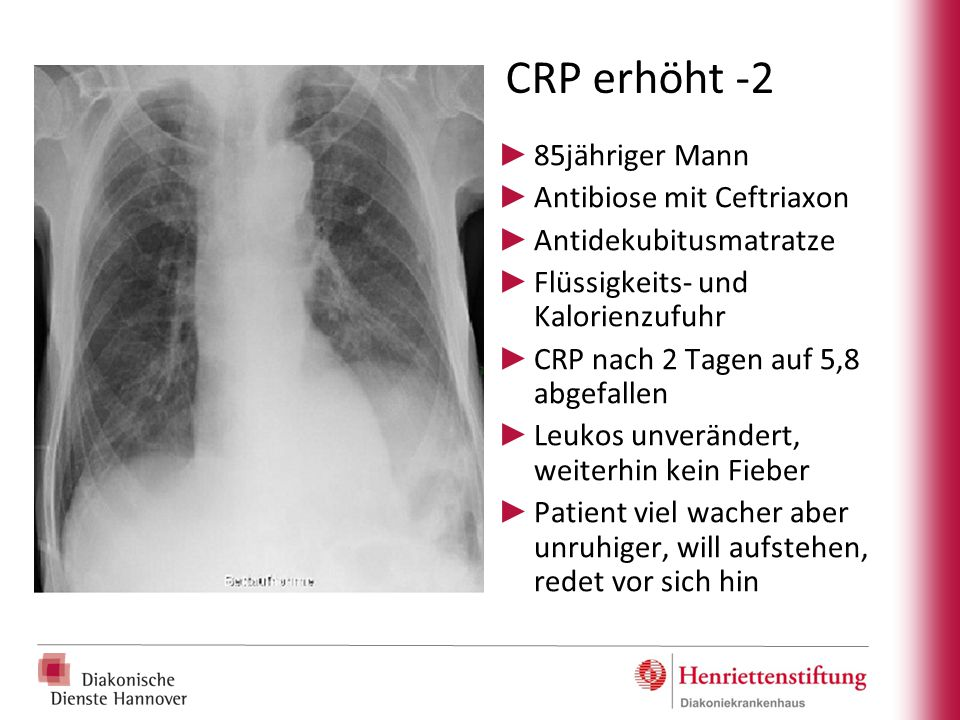 CRP erhöht -2 85jähriger Mann Antibiose mit Ceftriaxon