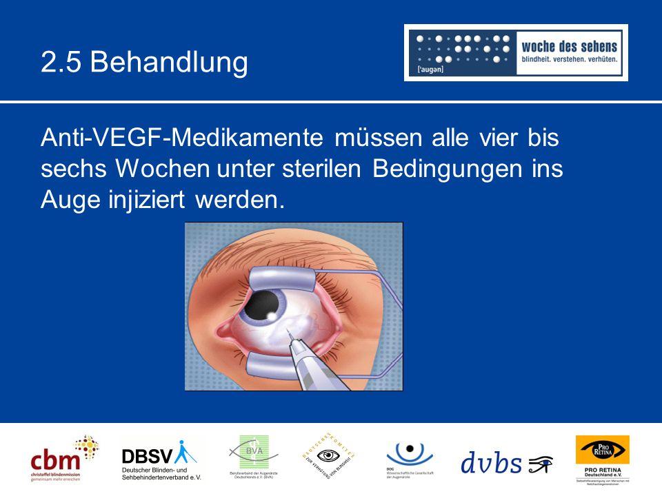 2.5 Behandlung Anti-VEGF-Medikamente müssen alle vier bis sechs Wochen unter sterilen Bedingungen ins Auge injiziert werden.