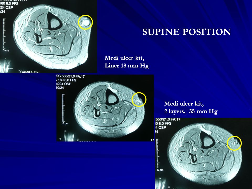 SUPINE POSITION Medi ulcer kit, Liner 18 mm Hg Medi ulcer kit,