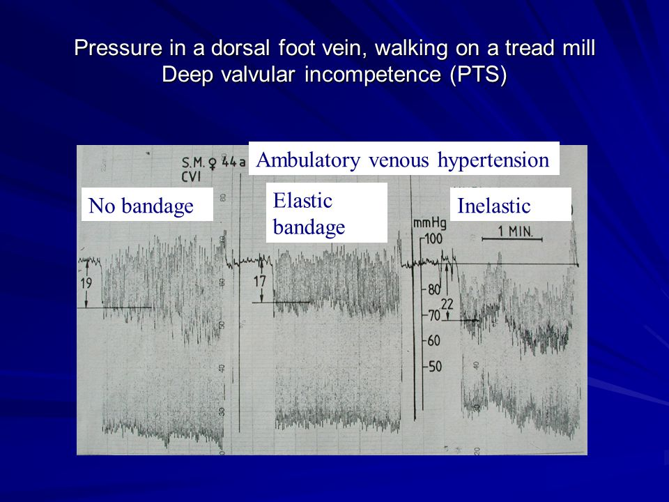 Pressure in a dorsal foot vein, walking on a tread mill Deep valvular incompetence (PTS)