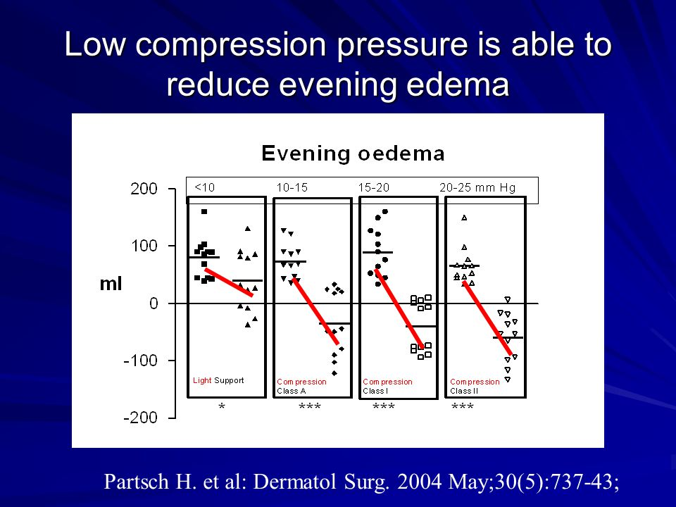 Low compression pressure is able to reduce evening edema