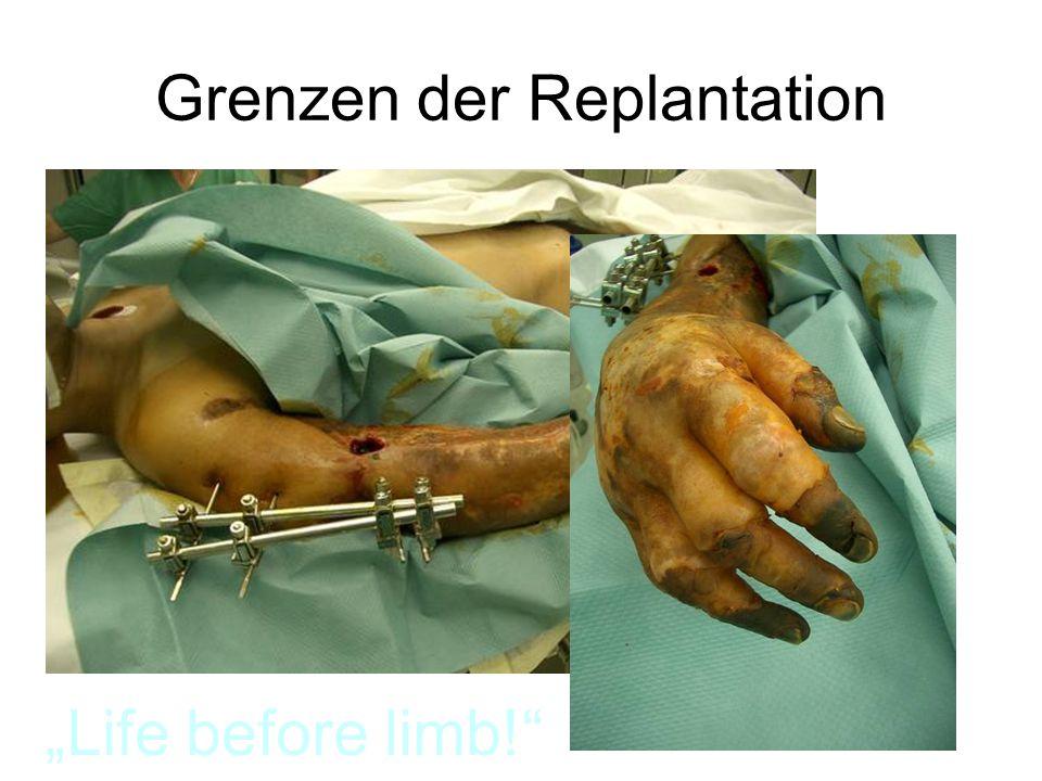 Grenzen der Replantation