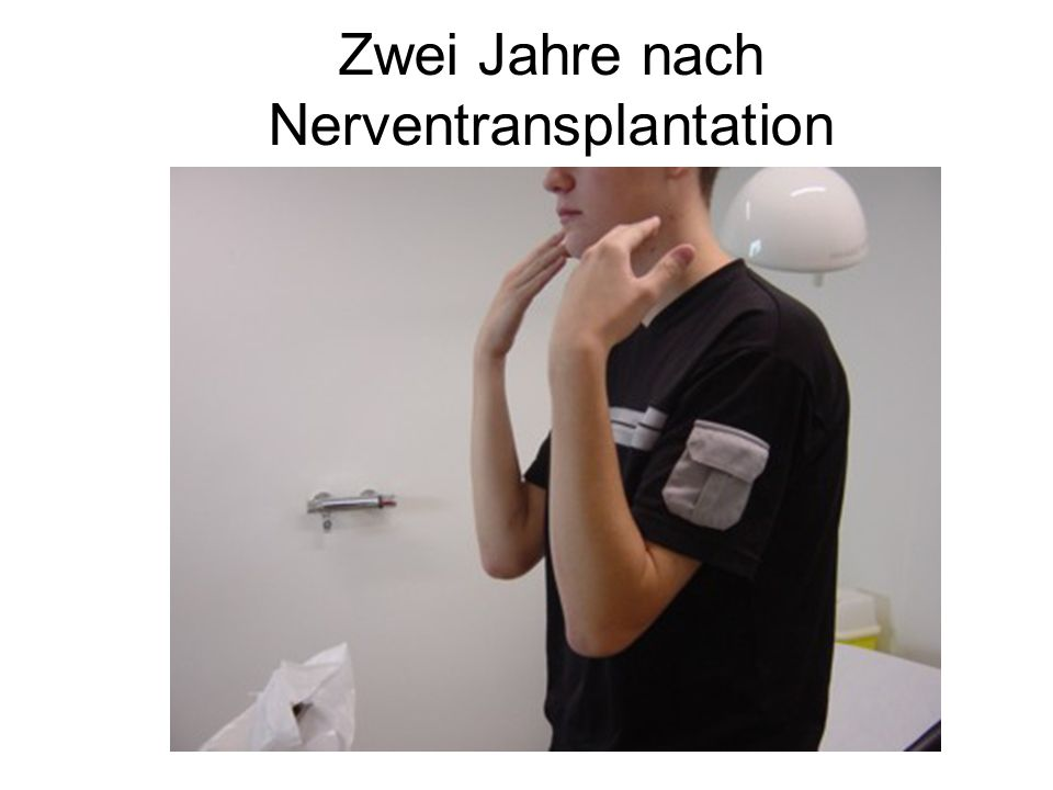 Zwei Jahre nach Nerventransplantation