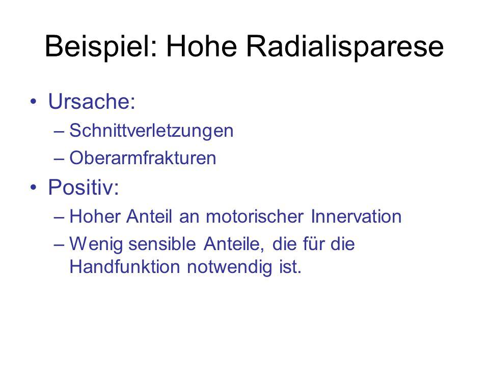 Beispiel: Hohe Radialisparese