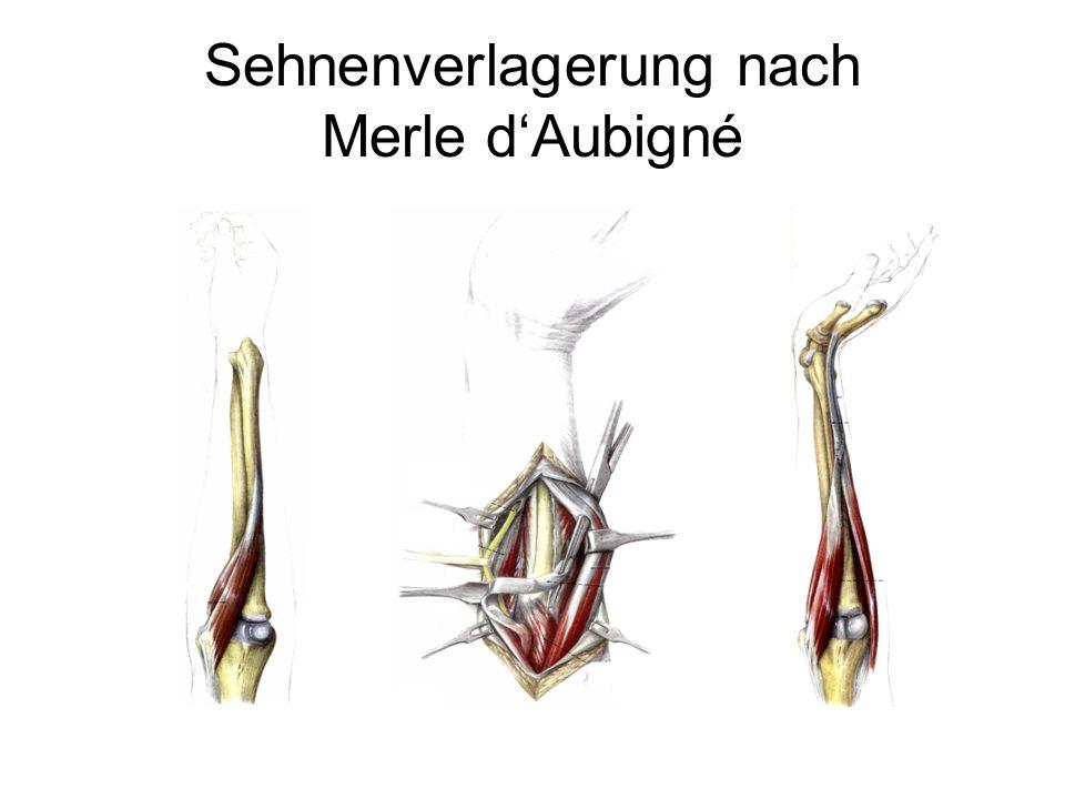 Sehnenverlagerung nach Merle d'Aubigné
