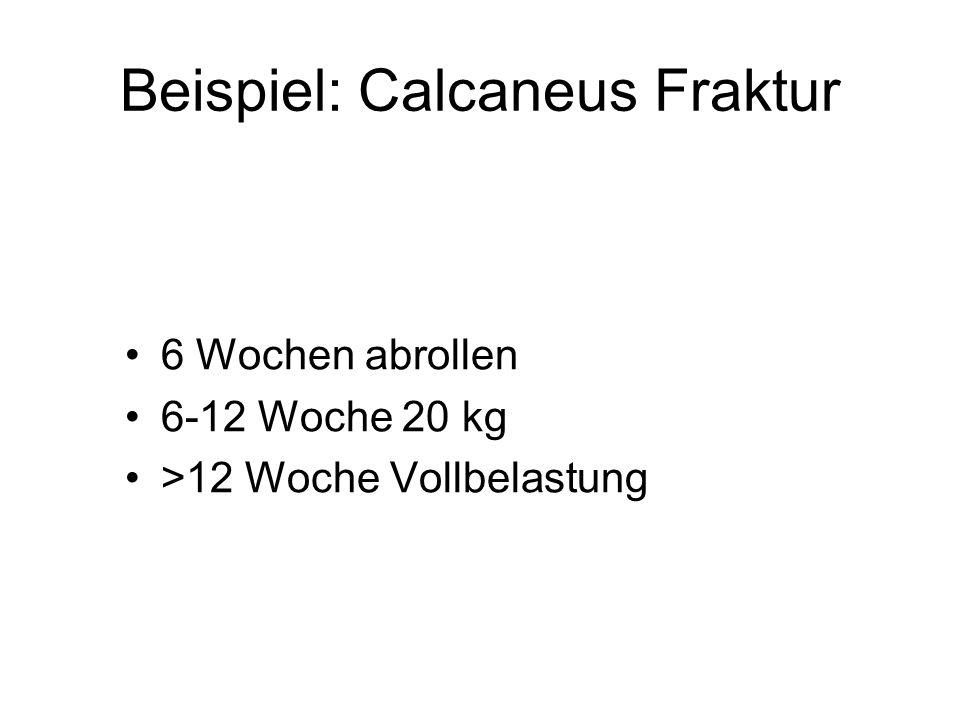 Beispiel: Calcaneus Fraktur