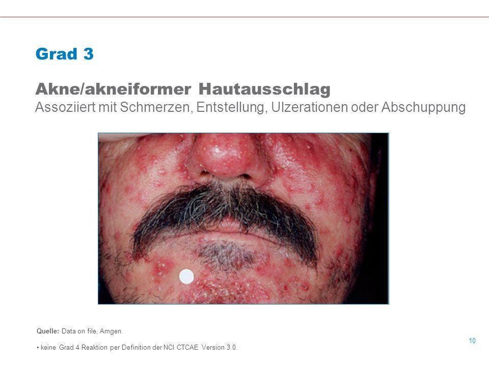 Grad 3 Akne/akneiformer Hautausschlag Assoziiert mit Schmerzen, Entstellung, Ulzerationen oder Abschuppung.