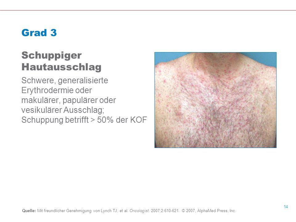 Schuppiger Hautausschlag