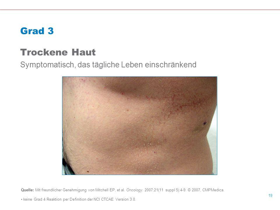 Grad 3 Trockene Haut Symptomatisch, das tägliche Leben einschränkend