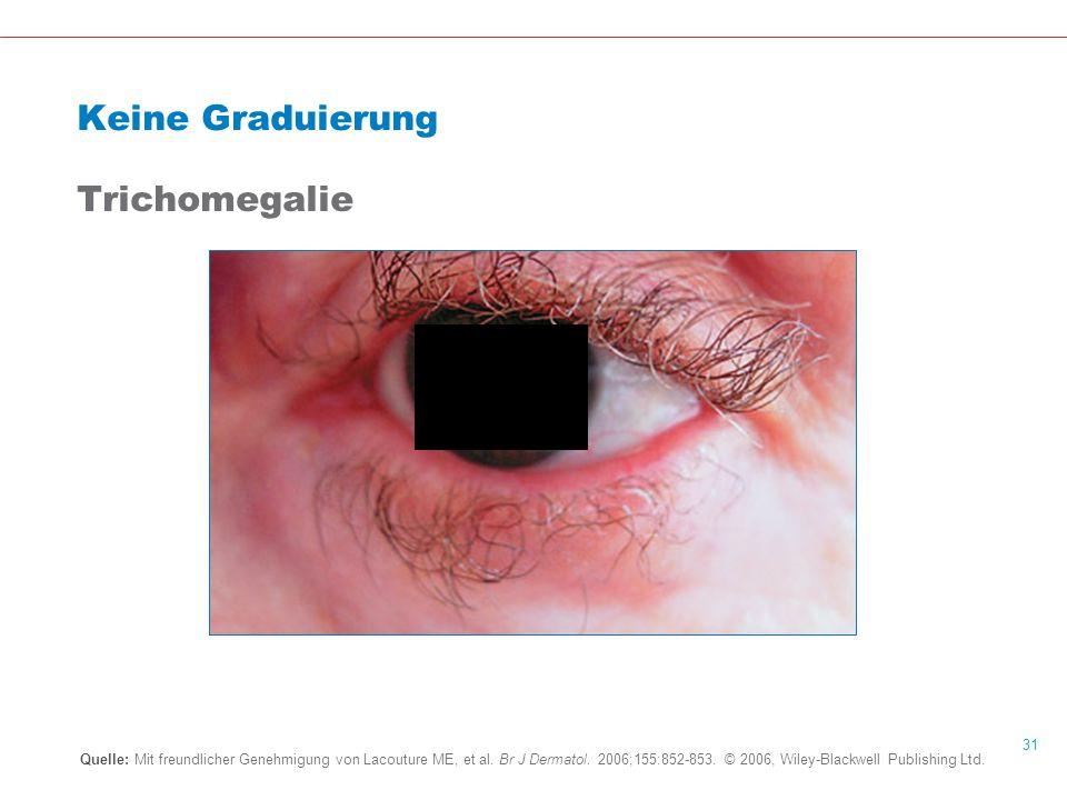 Keine Graduierung Trichomegalie