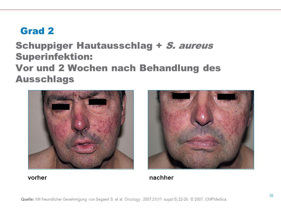 Grad 2 Schuppiger Hautausschlag + S. aureus Superinfektion: Vor und 2 Wochen nach Behandlung des Ausschlags.