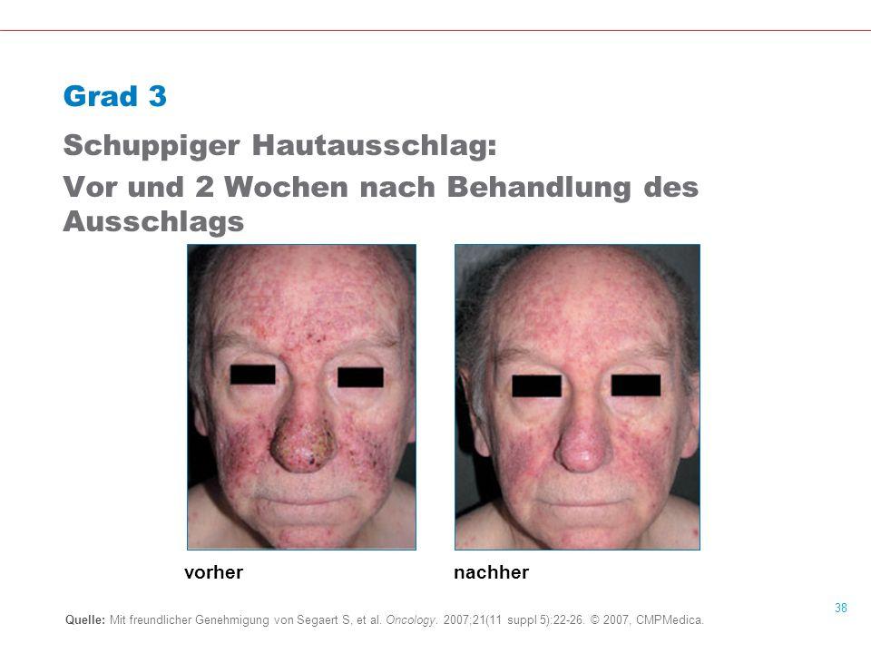 Schuppiger Hautausschlag: