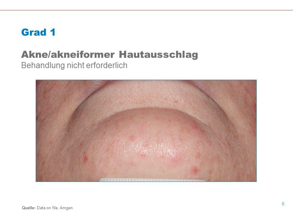 Akne/akneiformer Hautausschlag Behandlung nicht erforderlich