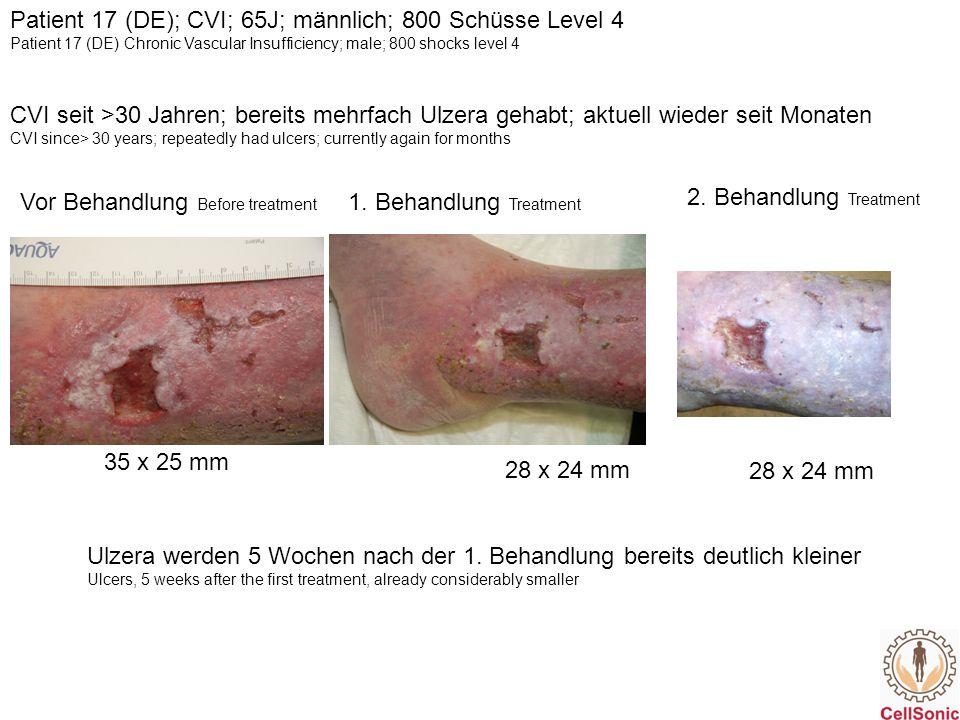 Patient 17 (DE); CVI; 65J; männlich; 800 Schüsse Level 4