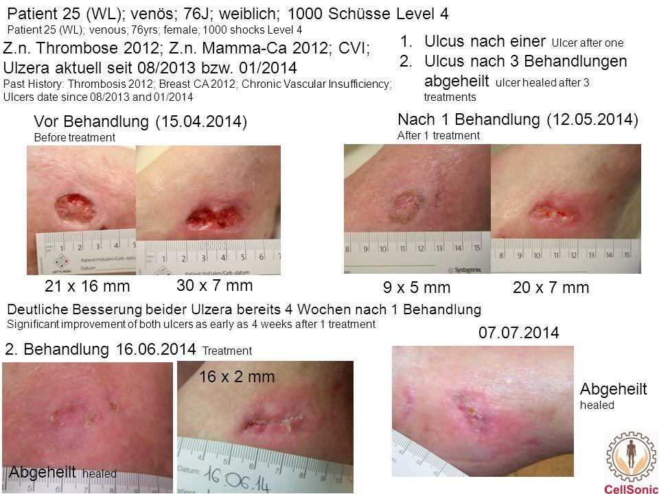 Patient 25 (WL); venös; 76J; weiblich; 1000 Schüsse Level 4