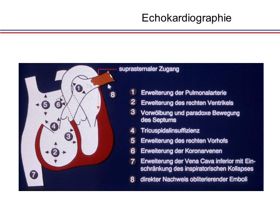 Echokardiographie Gering: 10%, mittel: 30%, hoch : 65%