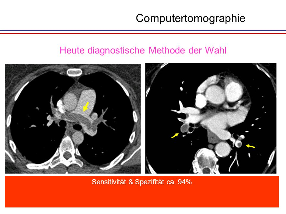Computertomographie Heute diagnostische Methode der Wahl