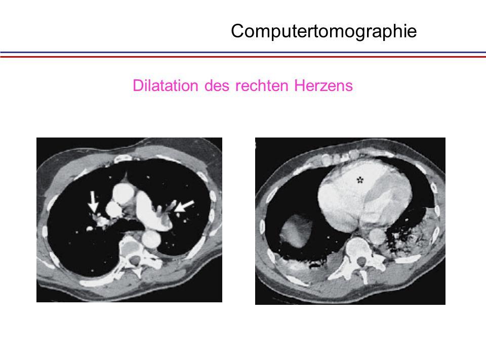 Dilatation des rechten Herzens