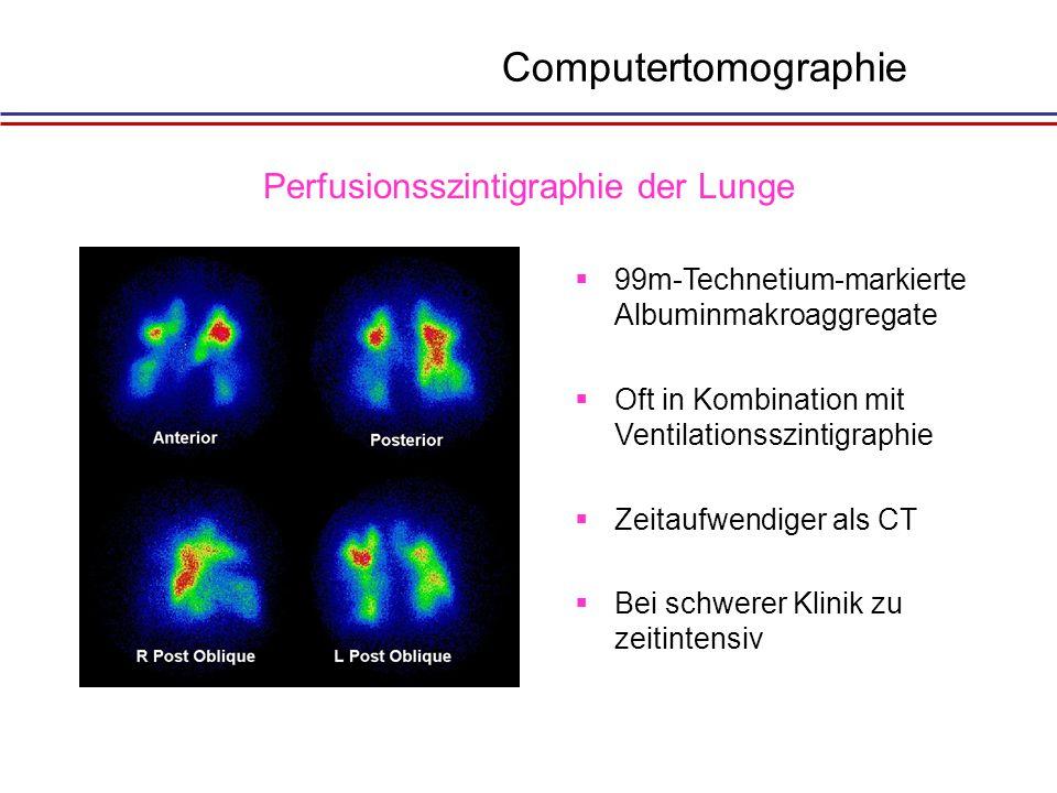 Perfusionsszintigraphie der Lunge