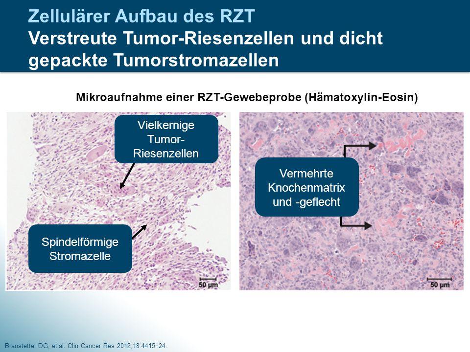Zellulärer Aufbau des RZT Verstreute Tumor-Riesenzellen und dicht gepackte Tumorstromazellen