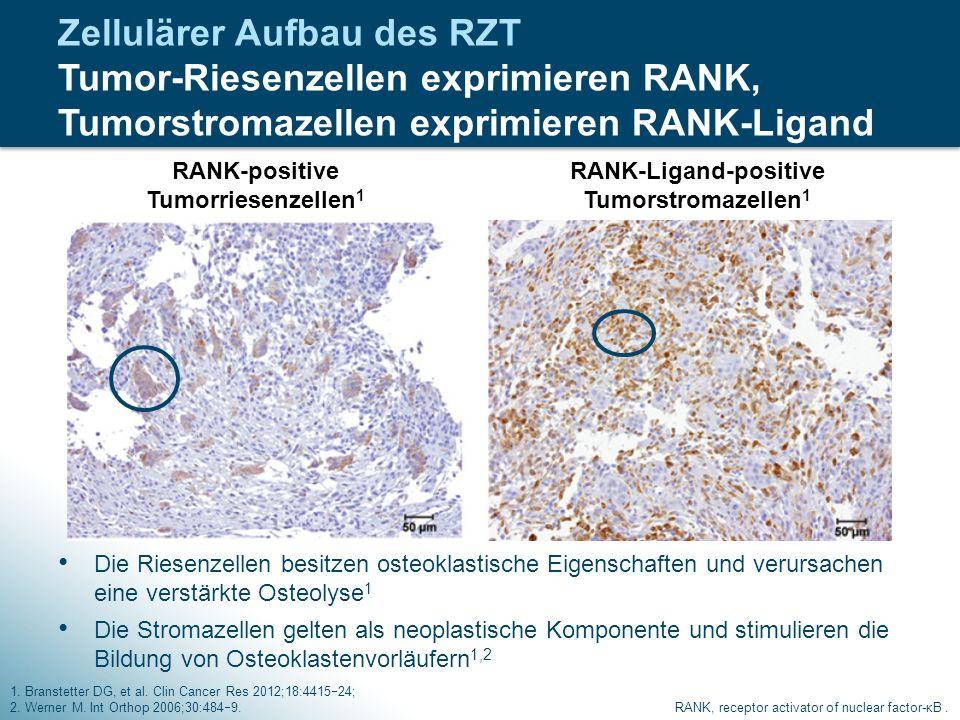 Zellulärer Aufbau des RZT Tumor-Riesenzellen exprimieren RANK, Tumorstromazellen exprimieren RANK-Ligand