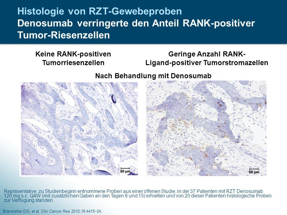 Histologie von RZT-Gewebeproben Denosumab verringerte den Anteil RANK-positiver Tumor-Riesenzellen
