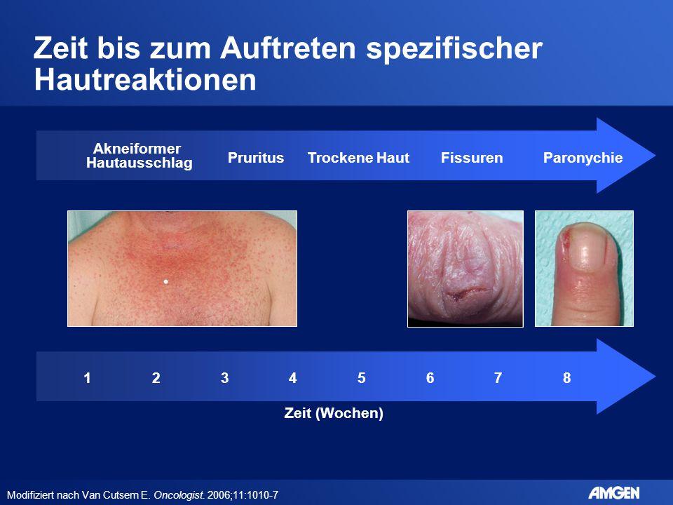Zeit bis zum Auftreten spezifischer Hautreaktionen