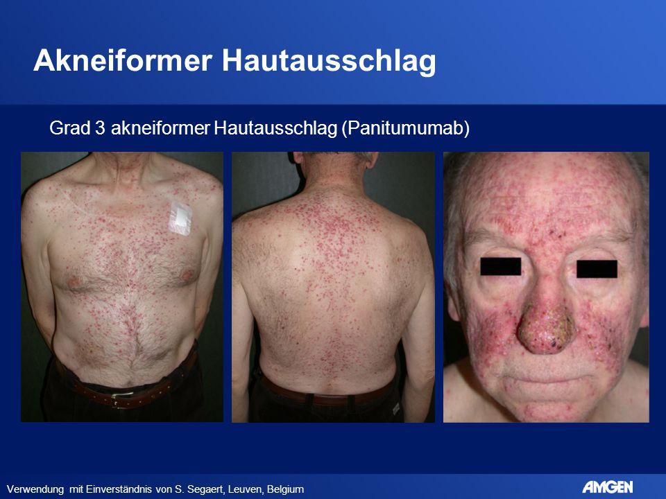 Akneiformer Hautausschlag