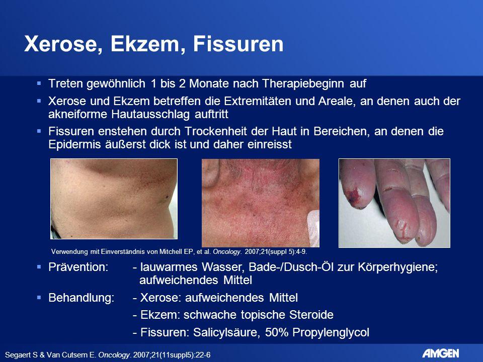 Xerose, Ekzem, Fissuren Treten gewöhnlich 1 bis 2 Monate nach Therapiebeginn auf.