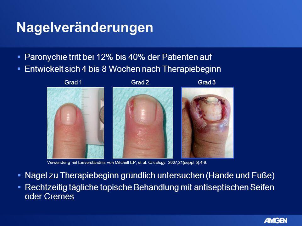 Nagelveränderungen Paronychie tritt bei 12% bis 40% der Patienten auf