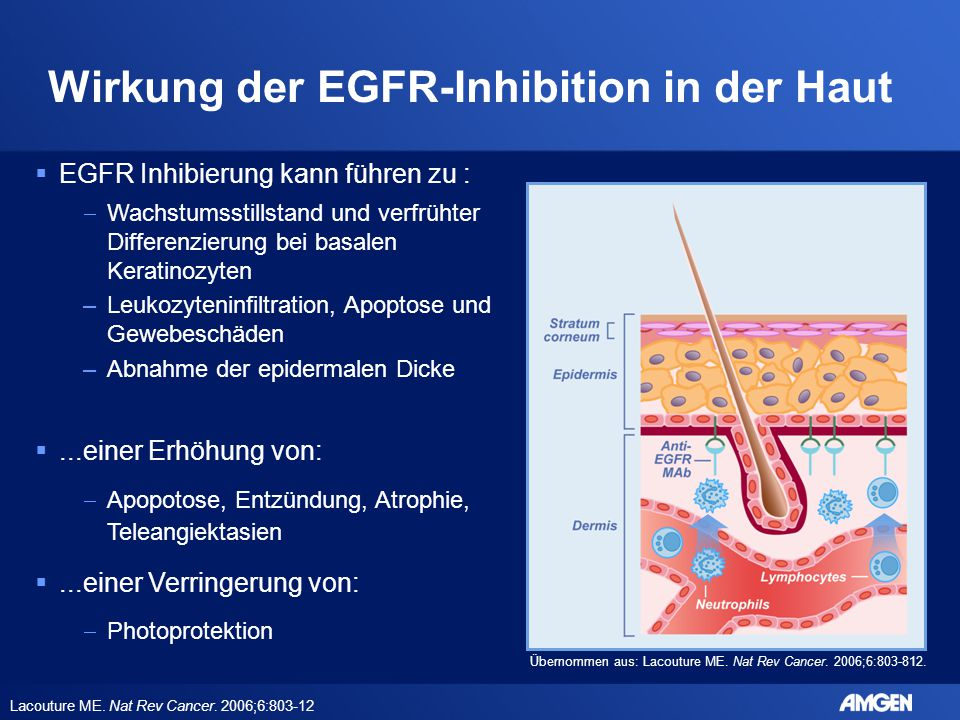 Wirkung der EGFR-Inhibition in der Haut