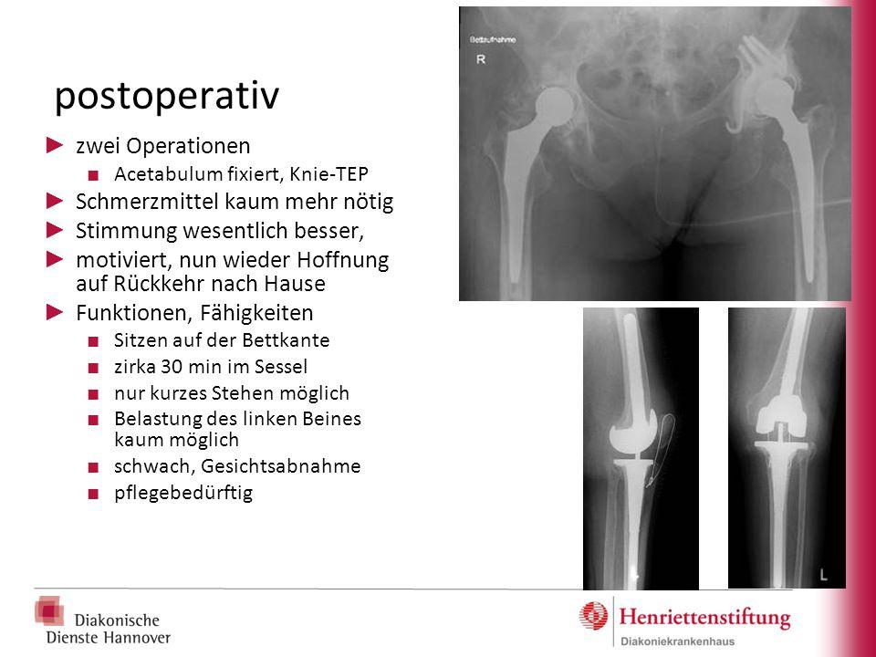 postoperativ zwei Operationen Schmerzmittel kaum mehr nötig