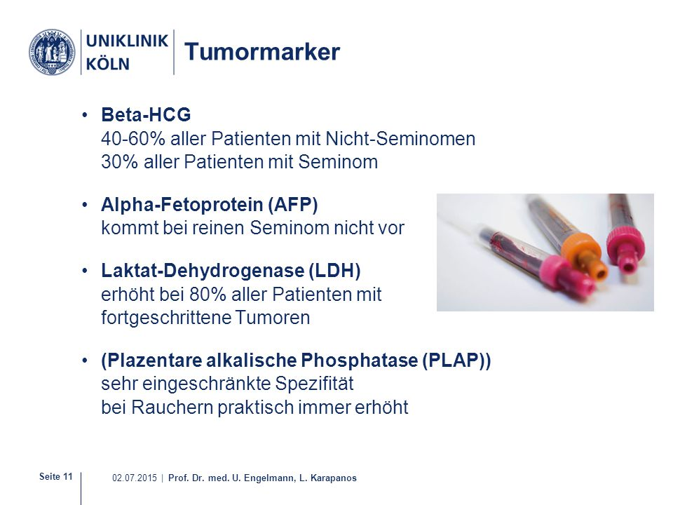 Tumormarker Beta-HCG 40-60% aller Patienten mit Nicht-Seminomen 30% aller Patienten mit Seminom.