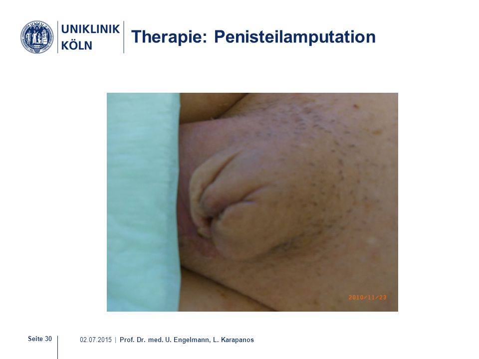 Therapie: Penisteilamputation