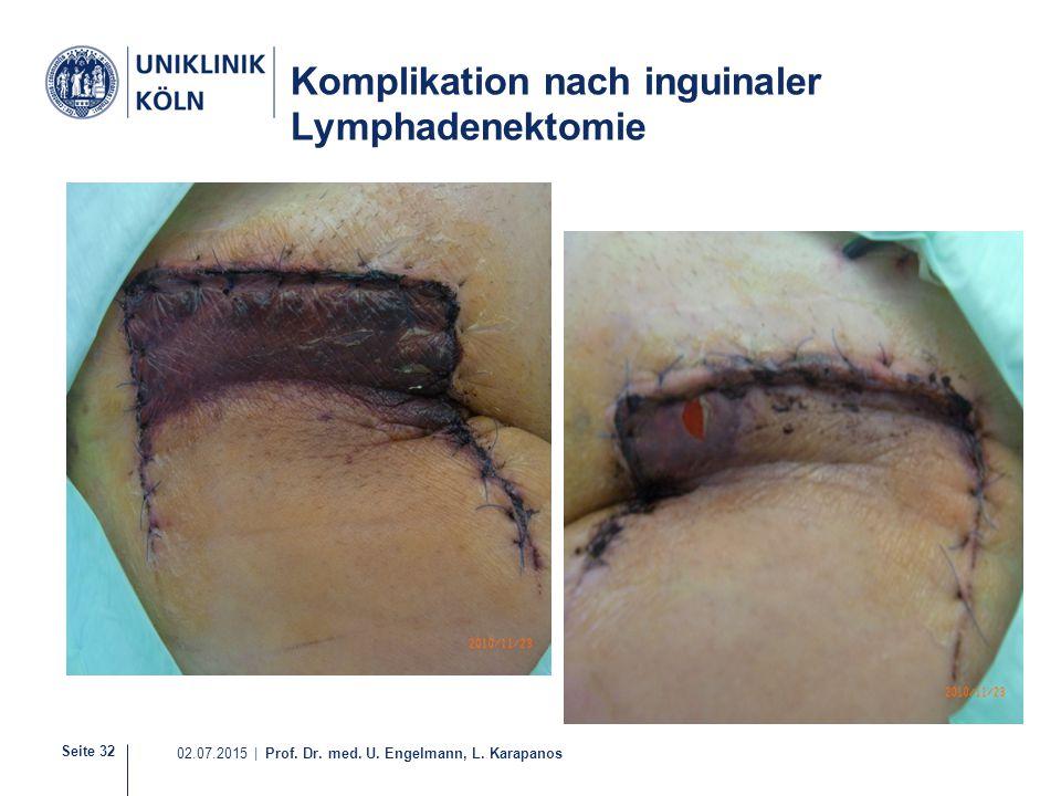 Komplikation nach inguinaler Lymphadenektomie