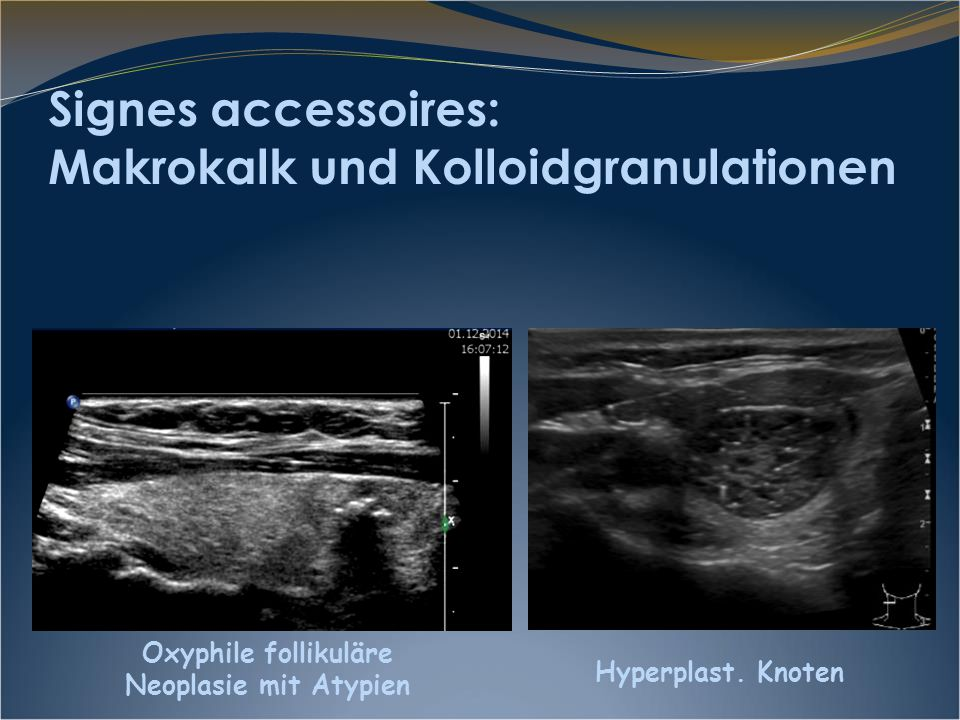 Signes accessoires: Makrokalk und Kolloidgranulationen