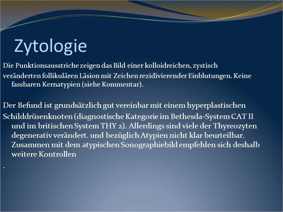 Zytologie Die Punktionsausstriche zeigen das Bild einer kolloidreichen, zystisch.