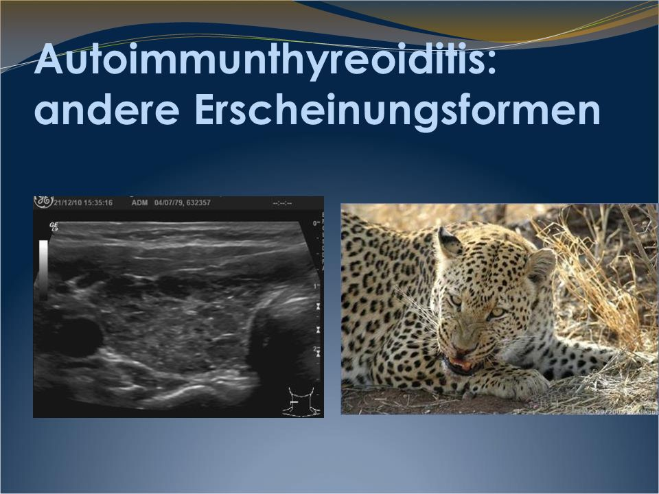 Autoimmunthyreoiditis: andere Erscheinungsformen